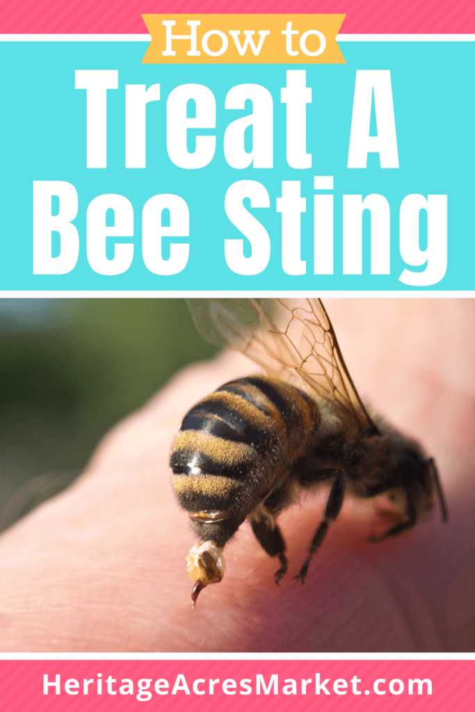 bee sting treatment